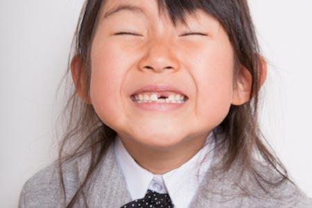 Kieferorthopädie Dr. Hellak Zahnspange für Kinder Frühbehandlung