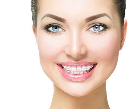 Kieferorthopädie Dr. Hellak feste Zahnspange durchsichtige Brackets