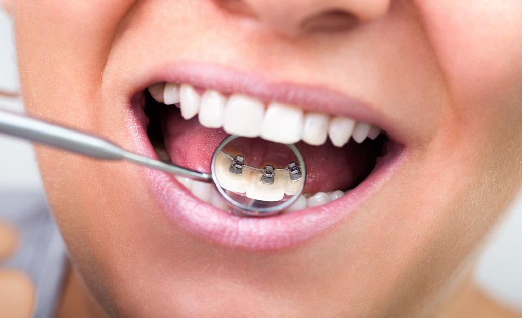 Kieferorthopädie Dr. Hellak feste Zahnspange unsichtbar innenliegend