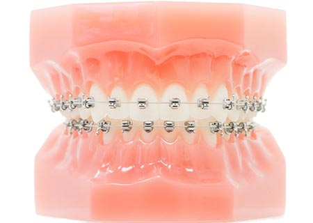 Kieferorthopädie Dr. Hellak feste Zahnspange Bracketsysteme SPEED